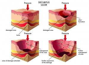 Stages of Heel Decubitus Ulcers / The Steele Law Firm